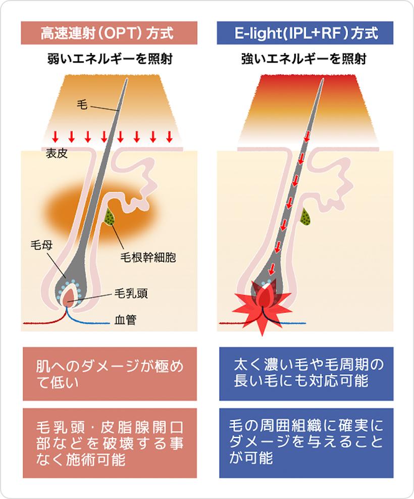 2つの施術方式であらゆる毛質・肌質に対応!